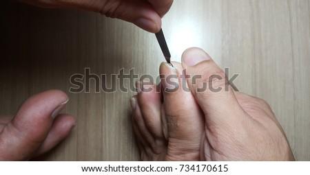 Remove Ingrown Toenail Stock Photo (Edit Now) 734170615 - Shutterstock
