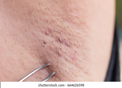 Removing armpit hair with tweezers.