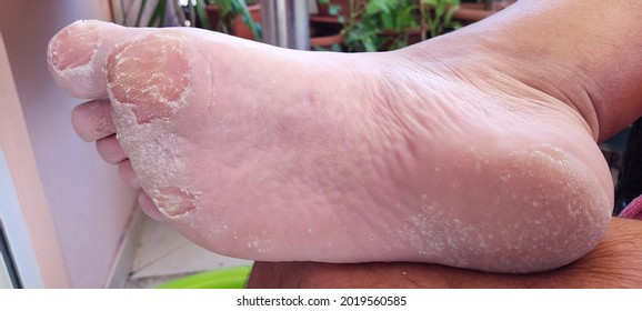 removing painful calluses and dry skin on the soles of the feet of adult man