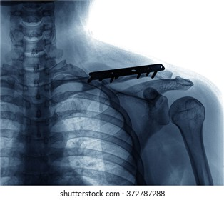 rengs snapshot of the shoulder joint with a bolt.