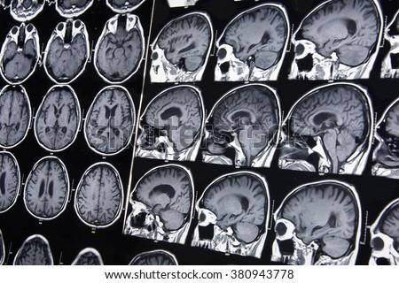 Brain scan datovania zápasu tvorby webových stránok šablóny