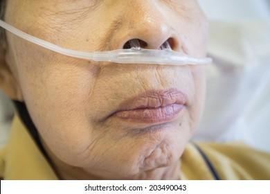 respiratory oxygen nasal catheter to the elder patient
