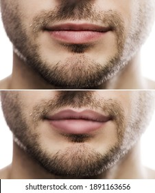 Result of lip augmentation. Male lips  before and after filler injection.