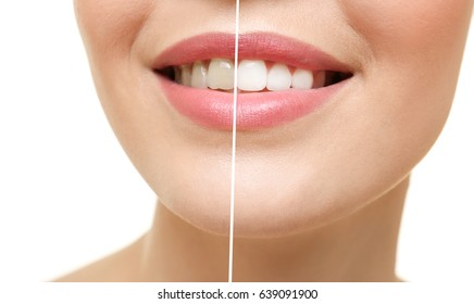 Result of teeth whitening. Smiling young woman on white background, closeup