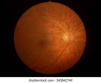 Retinal picture ,Medical photo tractional (eye screen) retinal detachment of diabetes