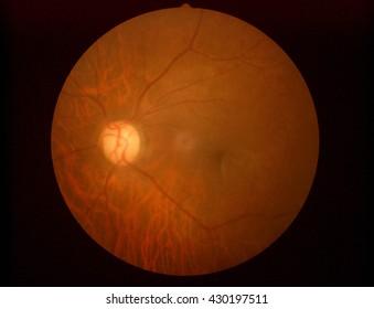 Retinal picture ,Medical photo tractional (eye screen) retinal detachment of diabetes
