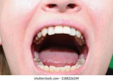 Retinished teeth are wisdom teeth. Preparing for the removal of wisdom teeth