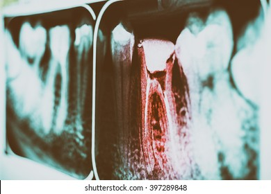 Retro Pain Of Tooth Decay On Teeth X-Ray