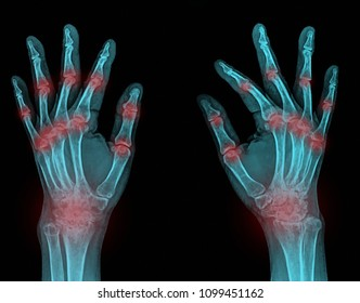 Rheumatoid arthritis , Gout arthritis ( Film x-ray both hands of child with multiple joint arthritis )