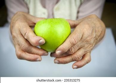 Rheumatoid arthritis hands and fruits. Apple in hand