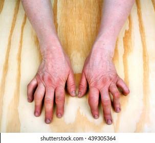 Rheumatoid arthritis hands. Wooden background