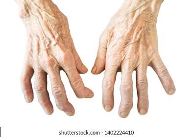 Rheumatoid polyarthritis of hands isolated on white background