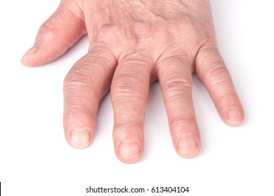 Rheumatoid polyarthritis of hands isolated on white background