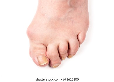 Rheumatoid polyarthritis on foot isolated on white background
