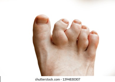 Rheumatoid polyarthritis on the toes, white background. valgus deformity of the toes with pathologicfractures