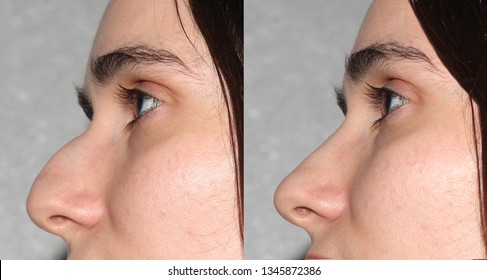 rhinoplasty - before and after surgery