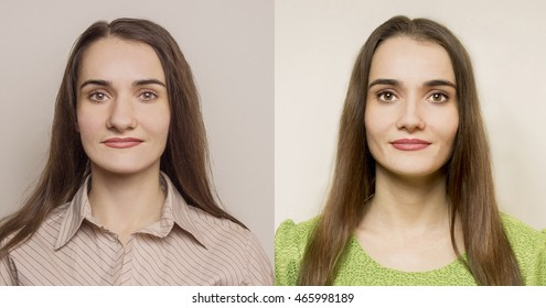 Rhinoplasty - nose before and after surgery