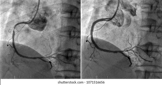Right coronary angiography,Left side is the disease at right coronary artery and right side is the right coronary artery after Percutaneous Coronary Intervention in cardiac catheterization laboratory.