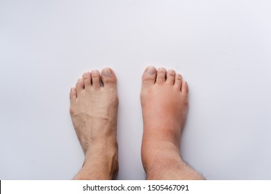 Right feet sprain swelling from trauma on white background.