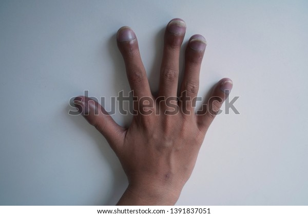 Right hand of patient with congenital cyanotic heart disease on white background. Typical characteristic for clubbing fingers. Focus on fingers.