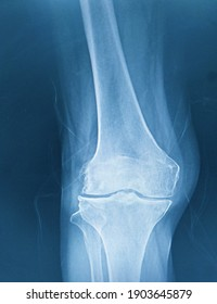 Right Knee joint x-ray showing narrowing joint spaces,bilaterally.Sclerosis of articular surface of lateral tibial plateau and lateral femoral condyles,OA right knees.