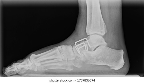 Right side lateral view foot x-ray showing restored anatomy after talo navicular arthrodesis with metal brackets for flat foot deformity