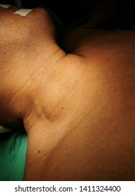 Right Supraclavicular Neck lipoma prepared for surgery