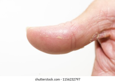 right thumb, atopic, dry skin