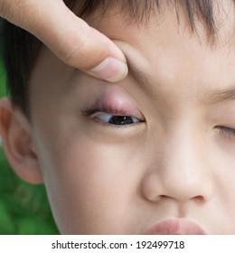 """Right upper eye lid abscess """"stye""""."""