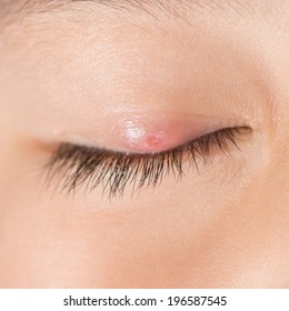 "Right upper eye lid abscess ""stye""."