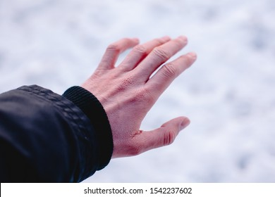 Risk of frostbite of hand or fingers outdoors during cold weather because of frost in winter