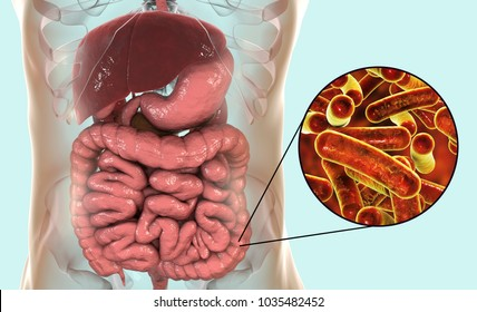 Rod-shaped bacteria Shigella which cause food-borne infection shigellosis or dysentery, the infection of large intestine, 3D illustration