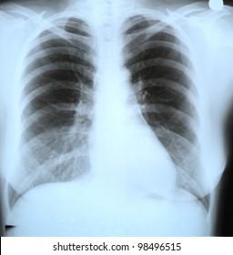 Roentgen shot of lungs
