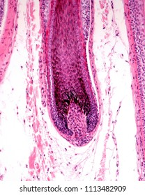 Root hair of a hair follicle showing an enlargement (hair bulb), with the dermal papilla. The hair matrix show many melanocytes rich in melanin granules.