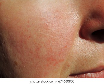 Rosacea on face of middle aged woman