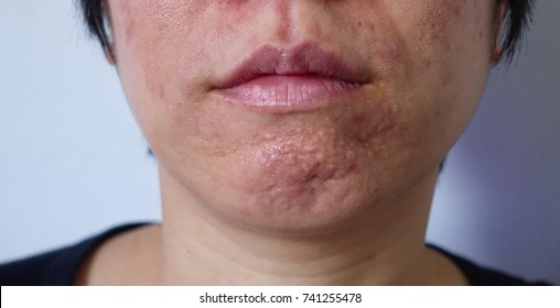 Rough skin around chin area cause by sebum-blocked, inflammation acne, have to cure by dermatologist. Asian woman has a problem skin, red comedon, inflammation acne, large pore, red acne lesion.