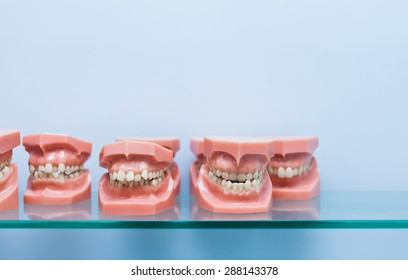 Row of many educational jaw models with wrong occlusion on a blue background on glass shelf in dentist office with copy space