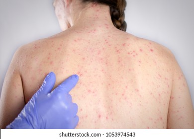 Rubella concept. girls back skin bubble rash