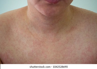 Rubella, also known as German measles or three-day measles,is an infection caused by the rubella virus.