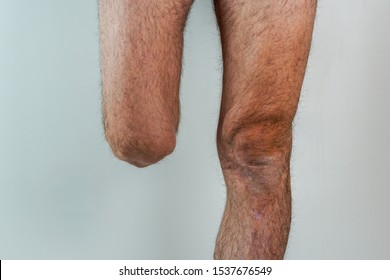 rugged man with an amputated leg isolated on White background