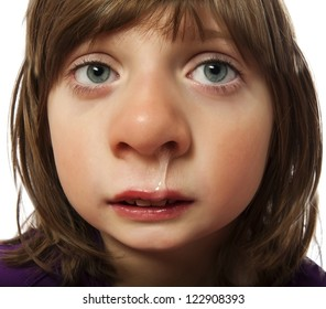 runny nose  - cold - ill little girl