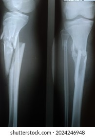 Sabu Island, General Hospital, February 27, 2021 : Rontgen result of 16 th years old boy with diagnose Open Fracture Tibia Fibula Dextra.