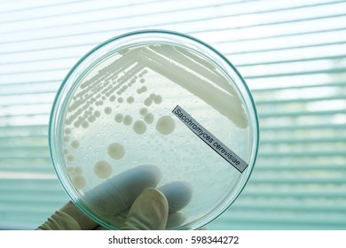 Sacchromyces cerevisiae colony in petridish with microbiology concept