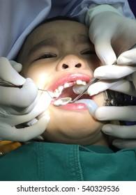 sad boy at the dentist chair during a dental procedure. Little boy having his teeth examined by a dentist