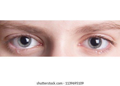 Sad eyes with tears close-up. Looking at the camera. Isolated on white background