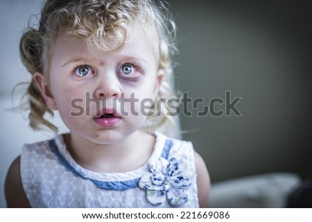 Sad and Frightened Little Girl with Bloodshot and Bruised Eyes.