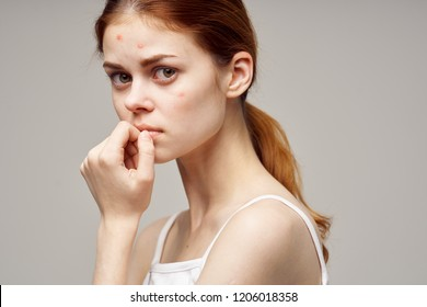 sad woman with pimples on face