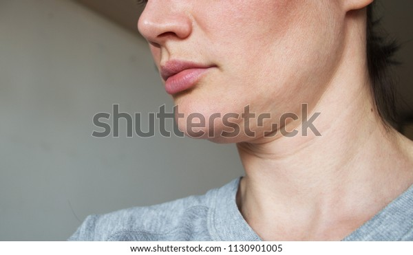 sagging chin. face line correction
