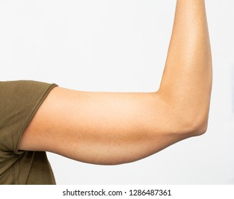 Sagging skin under the arms