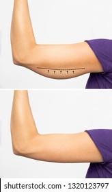 Saggy skin removal and arm before and after toning exercises